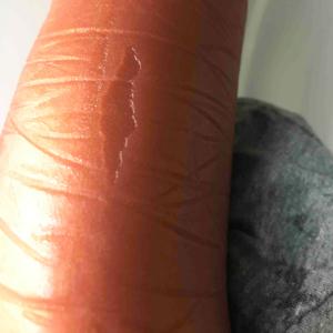 Contact Burn from vinyl plasticizers